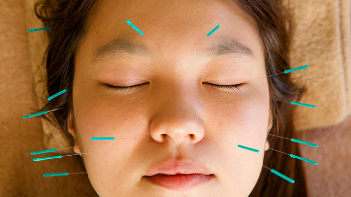 Cosmetic-Acupuncture in Stuart fl